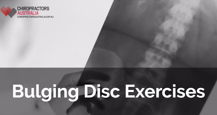Bulging Disc Exercises