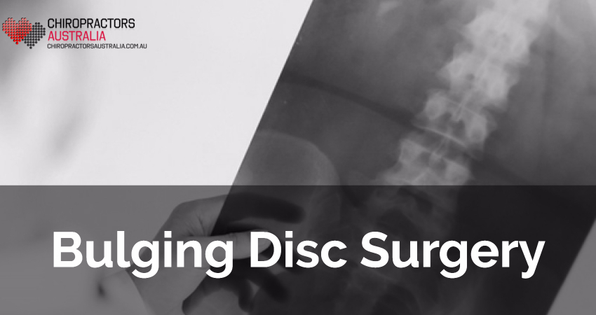 Bulging Disc Surgery