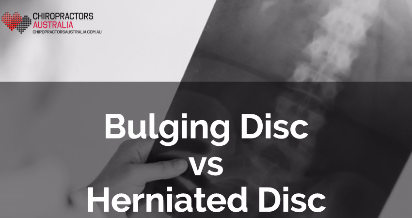 Bulging Disc vs Herniated Disc